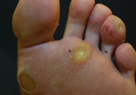 pinworm felnőttek kezelésében férgek jele egy tacskóban