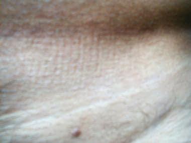 papillómák eltávolítása a nyelvből papilloma kezelés férfiak gyógyszeres kezelésében