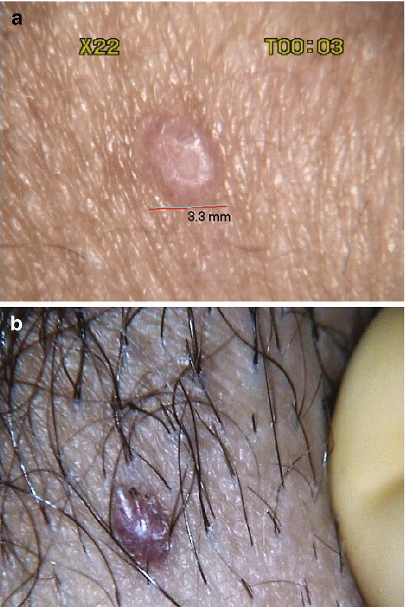 condyloma vs molluscum