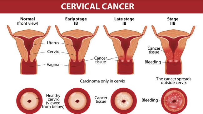 Papilloma nap, HPV (Humán Papilloma Vírus) fertőzés