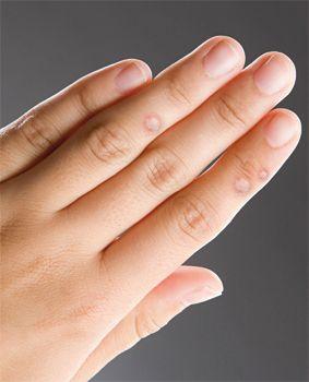 szemölcsök ültetése az ujjak közé