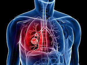 jóindulatú tüdőrák