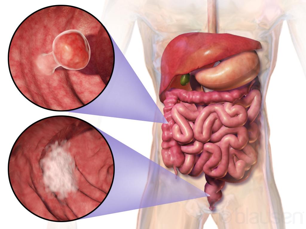 A gerinc áttétes daganatai | Dr. Lazáry Áron PhD, gerincsebész főorvos