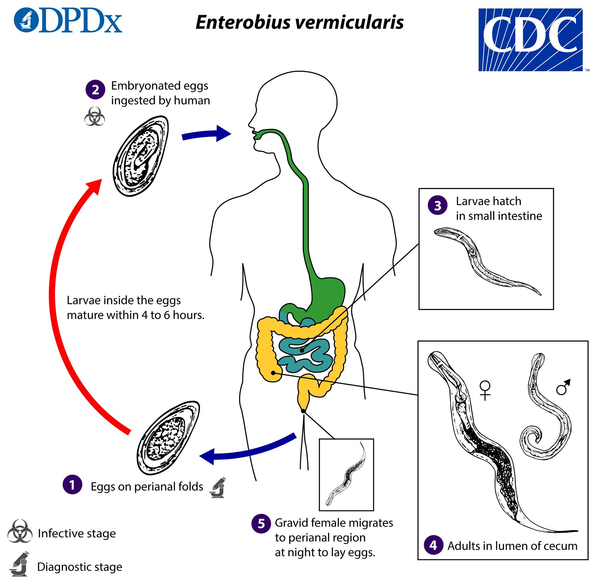 enterobius vermicularis fertőzés forrása a szervezet méregtelenítő receptje