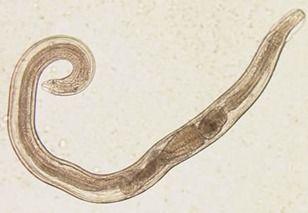a leghatékonyabb parazitaellenes tisztító vélemények hpv nedir erkeklerde
