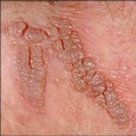 hpv vírus tedavisi nedir
