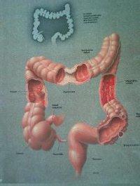 Colon Hydroterápia   Vita-Pharm Magánklinika & Fogorvosi Szakrendelőbe