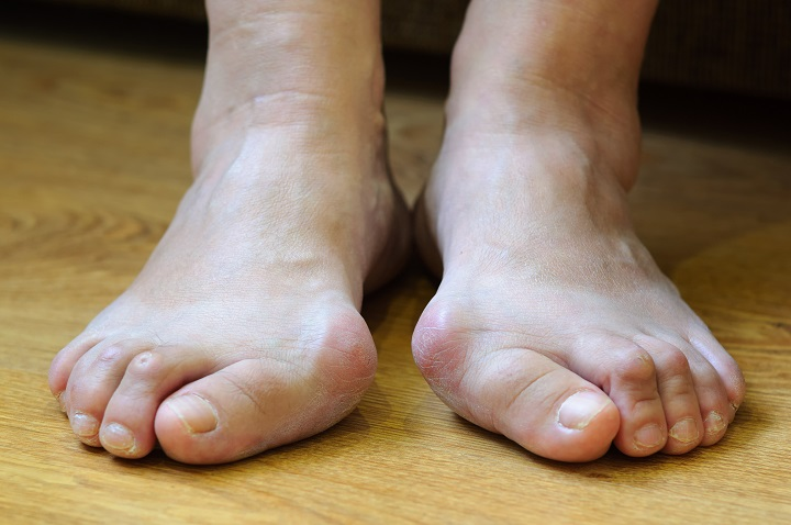 fekély jelent meg a lábujjai között