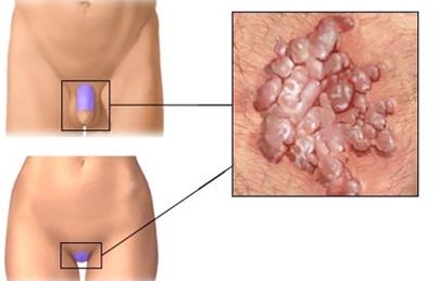 genitális szemölcsök férfiak kenőcs kezelésében