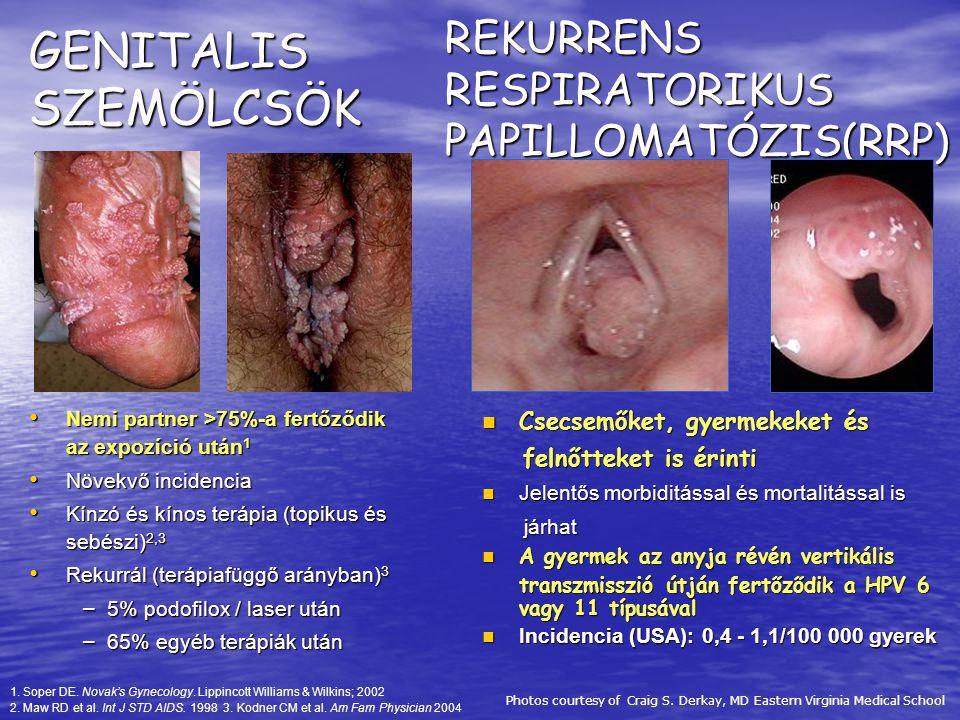 genitális szemölcsök vagy humán papillomavírus hpv))