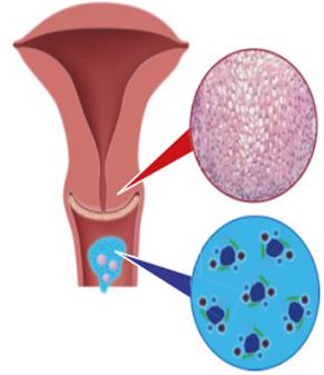 hpv kezelés terhesség féreg menstruáció