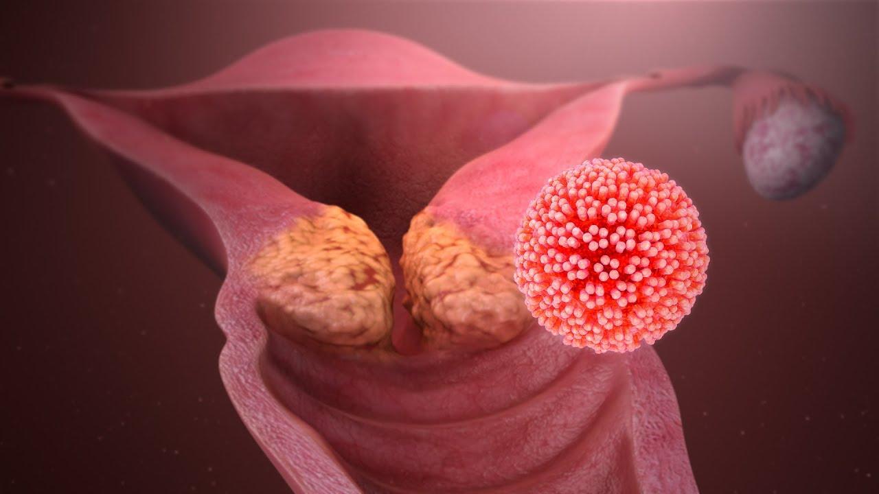 miért termékenyek a földigiliszták papillómák a vulva kezeléséről
