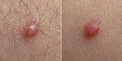 Baleseti sebészeti egynapos műtétek - Ars Medica Lézerklinika