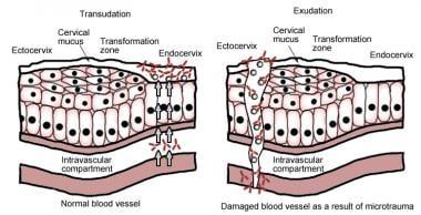 Emberi papillomavírus medscape
