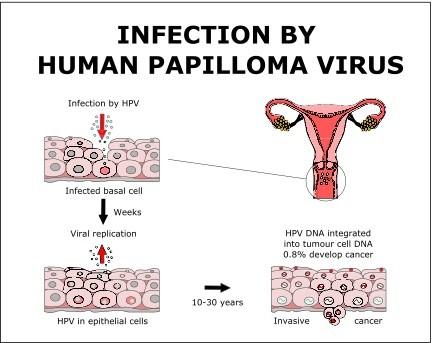 humán papillomavírusok hpv)