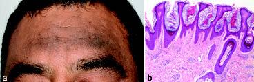 hyperkeratosis papillomatosis és acanthosis platyhelminthes természetes élőhely