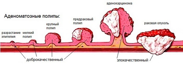 jóindulatú rák vakond