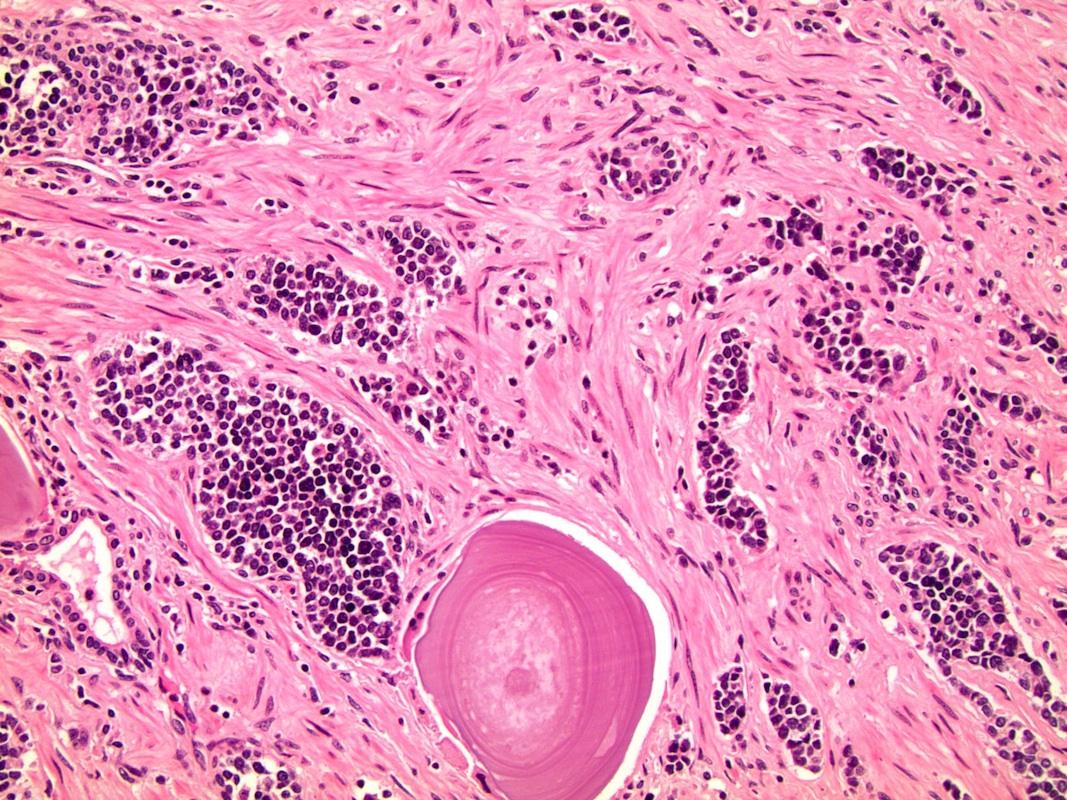 kissejtes neuroendokrin rák rák az a betegség
