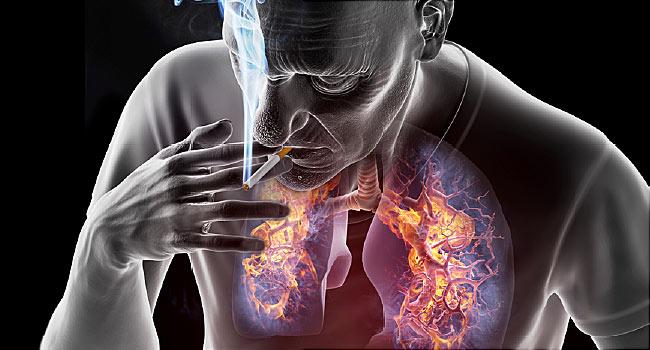Tüdőrák - tünetek, kezelés, diagnosztika | hajtervezes.hu