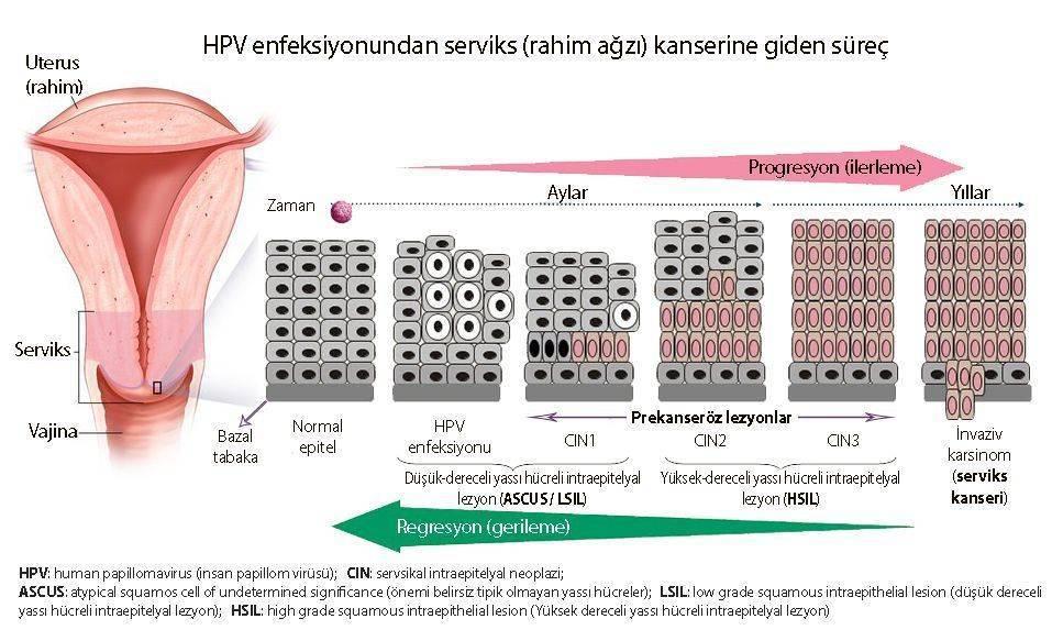 papilloma vírus hsil cin 2