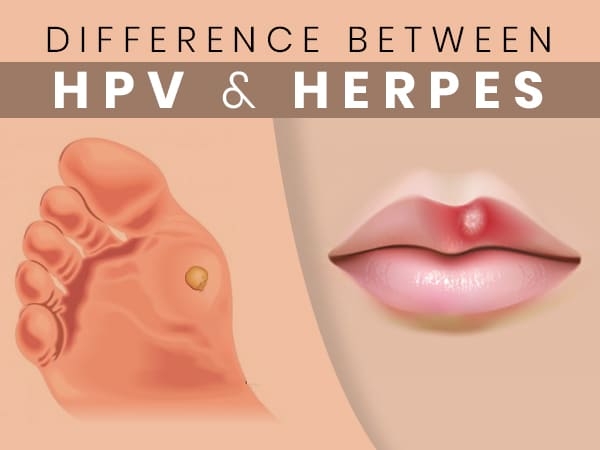 papilloma vs herpesz