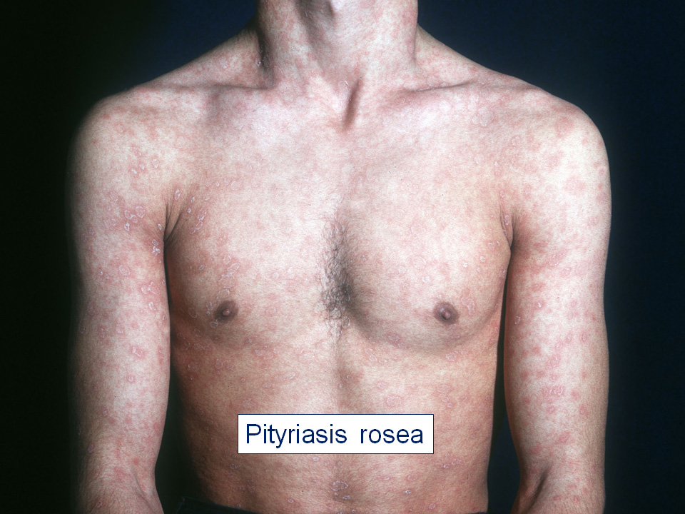 papillomatosis reticularis et confluens