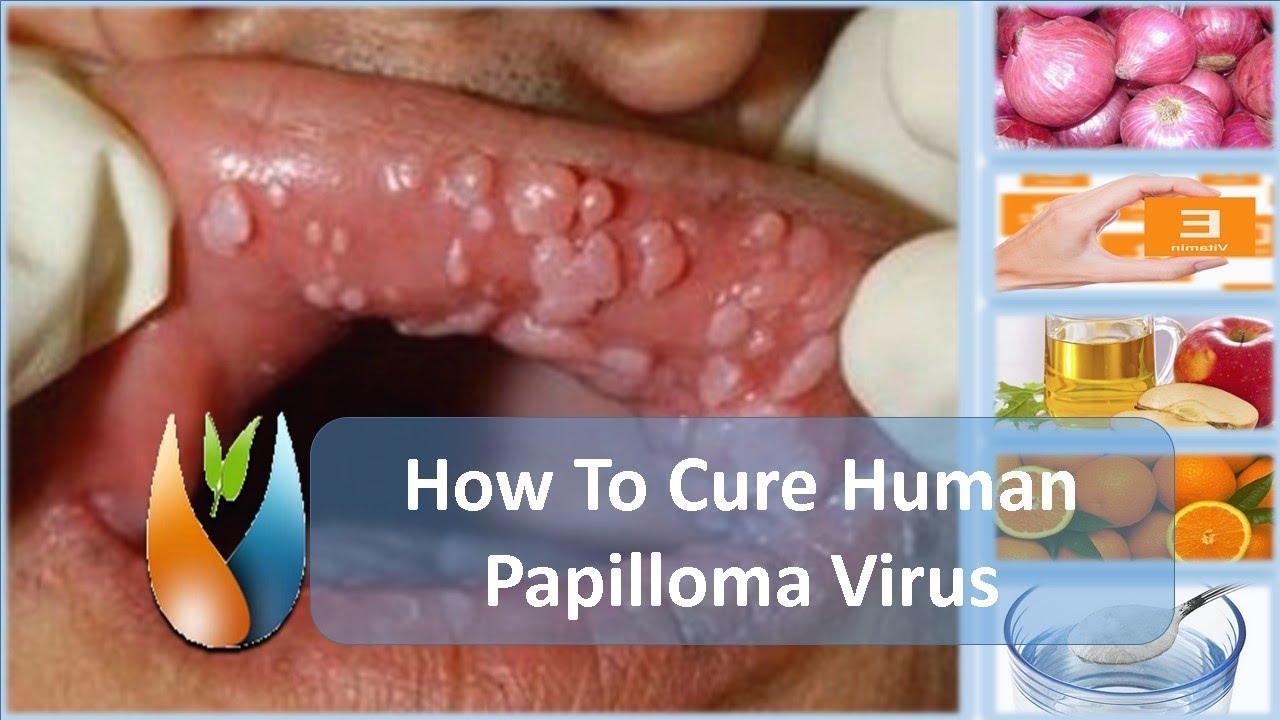 hpv vírus tedavisi var m