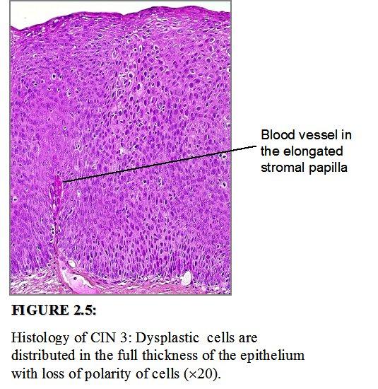 A HPV és a méhnyakrák összefüggései