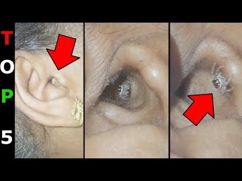 parazita láncok gyógyítása szemölcs a talpi szemölcsök árából