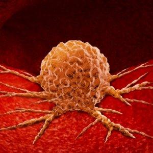 Diéták daganatos betegek számára   hajtervezes.hu