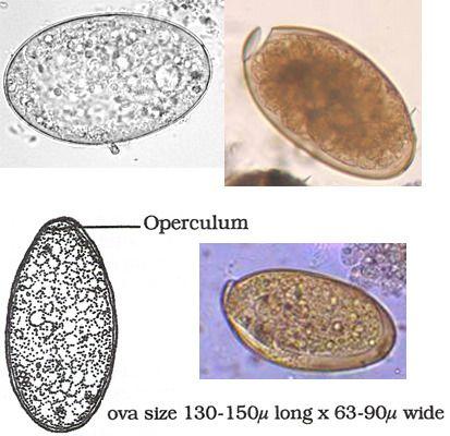 hogyan lehet eltávolítani a papillómákat a felülvizsgálat nyakából a giardia fertőző kezelése
