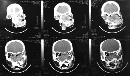 Sinusitis sphenoidalis