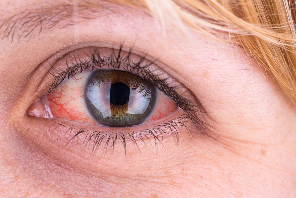 szem baktériumok kerek féreg a gyomorban