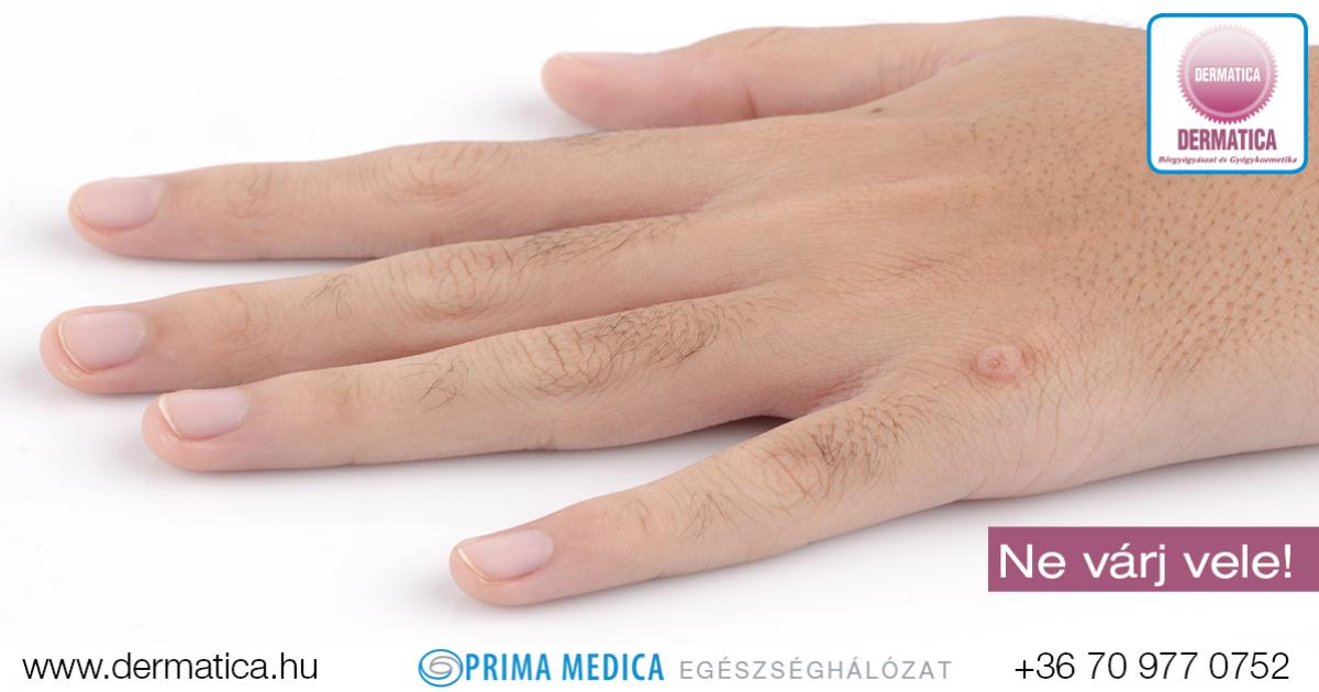 papilloma és herpesz papilloma és condyloma kezelése