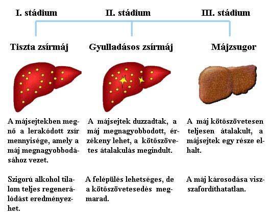 utolsó stádiumú rák tünetei)
