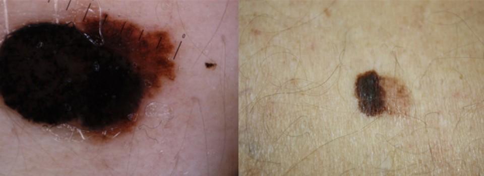 parazitacsepp a szemen Vastagbél méregtelenítő mellékhatások