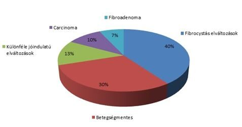 intraductalis papilloma a menopauza után kóros papanicolaou és vph pozitív
