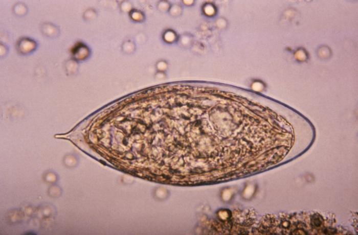 schistosomiasis egyiptom