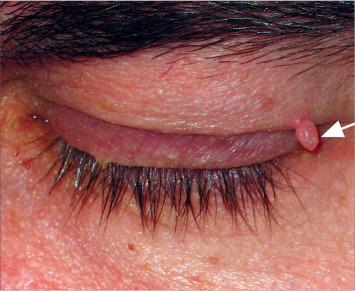 hemangioma papilloma