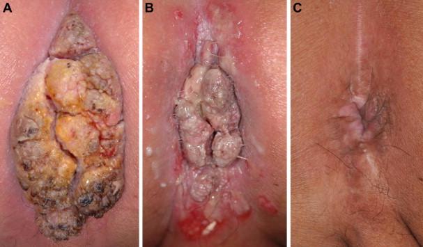 veszélyes eltávolítani a nemi szemölcsöket rák a hasi szövetekben