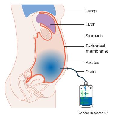 peritoneális rák életvégi tünetei