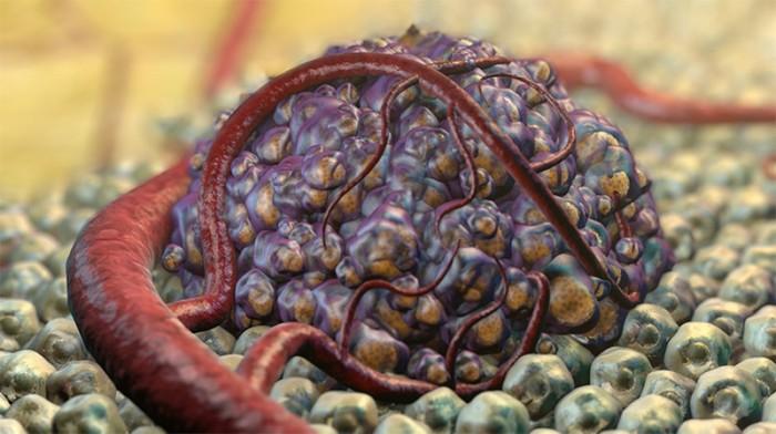Daganatterápia - Melyik kezelés jöhet szóba?