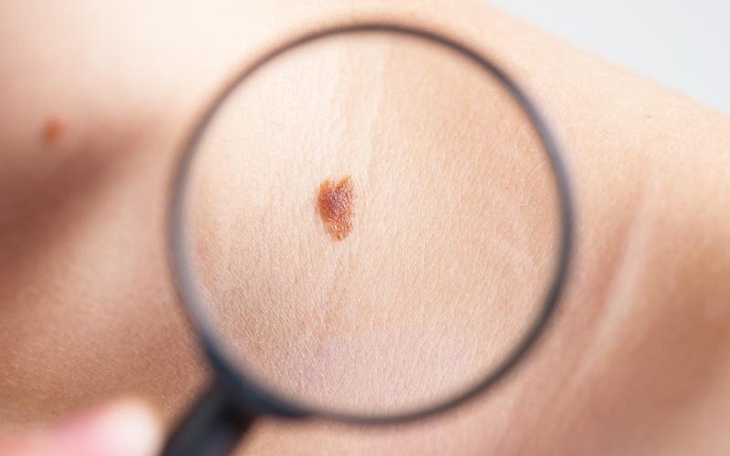 tartós szőrtelenítés és bőrrák