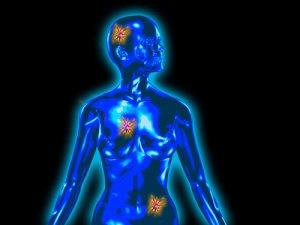 a rák jóindulatú volt megelőző tabletták férgek számára gyermekek számára