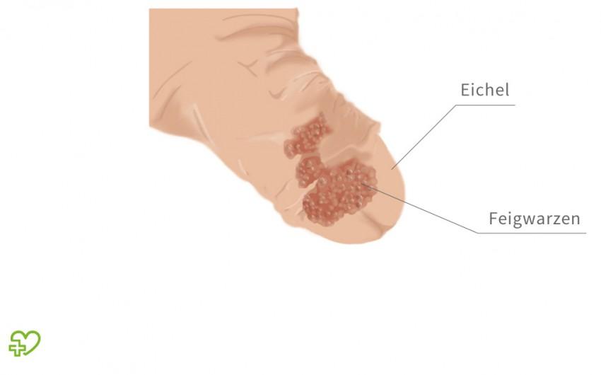 Hpv szajban kezelese Giardia scaun galben