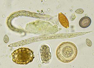 parazita-kiegészítők féreg szoptatási kezelés