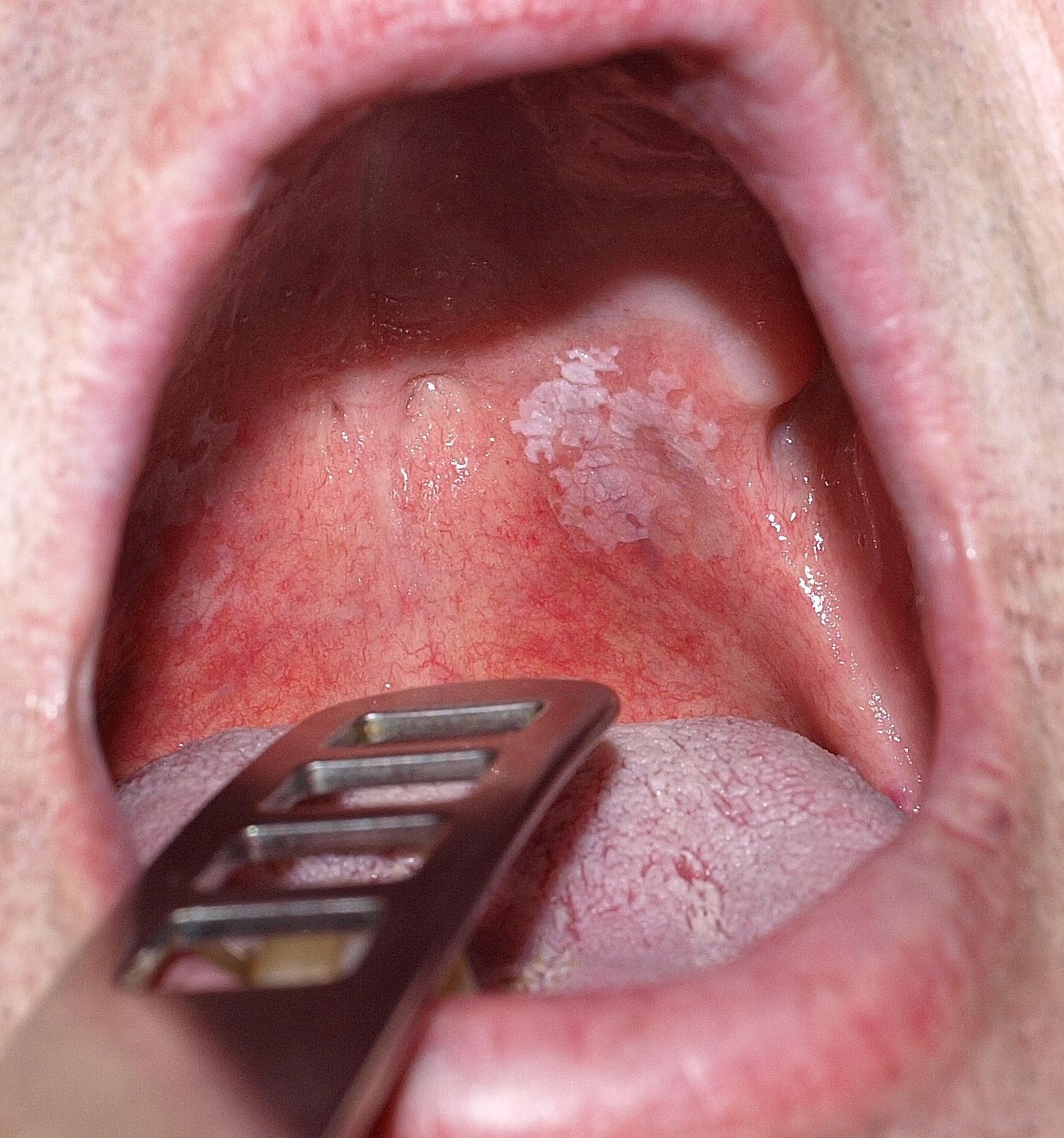 papilloma a szájban képek