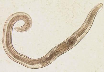 Enterobiosis vizeletben