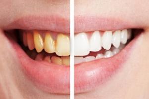 a fogbetegségek lelki háttere