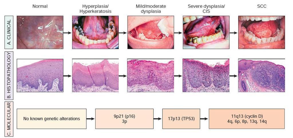 hpv rák progressziója a férgek kezelésének hatékony módja